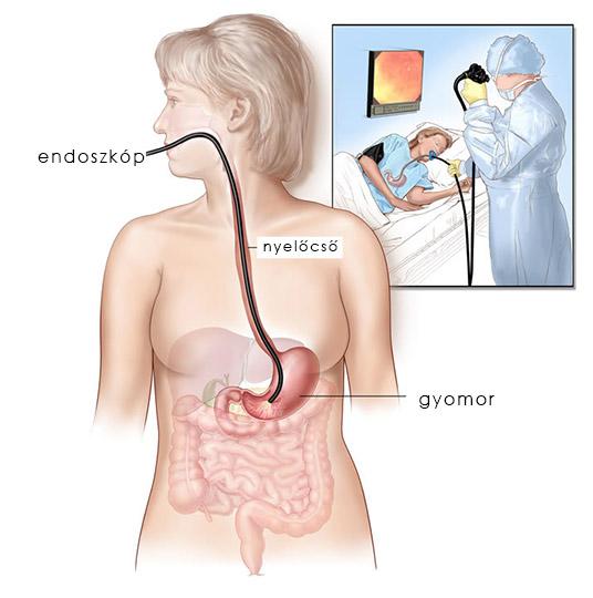 Gyomortükrözés gasztroenterológiai magánrendelőnkben