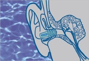 hallójárat-gyulladás-1