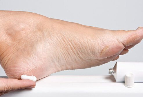 lábápolás