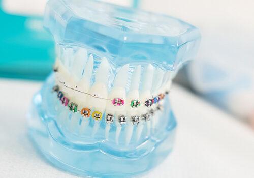 Magán fogorvosi ellátás budapest - Fogszabályzás