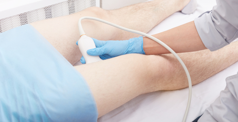 doppler ultrahangvizsgálat visszerek esetén)