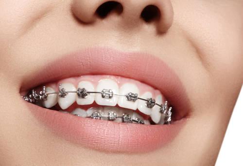 Mikor-van-szukseg-fogszabalyozasra-FOKEP.jpg